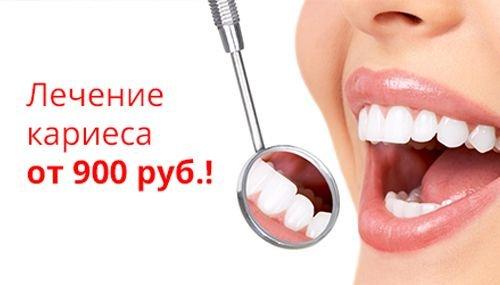 отбеливание зубов ижевск отзывы